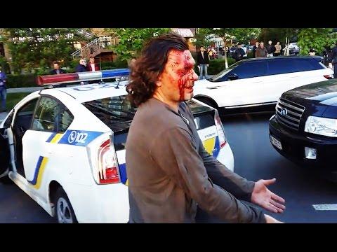 Полиция дубинкой разбила голову водителю  - «происшествия видео»